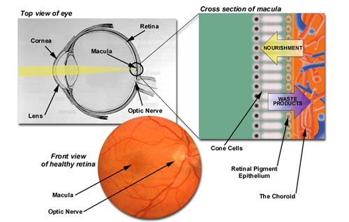 Cause of Macular Degeneration